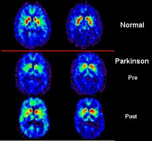 PET_scan_Parkinson&#039;s_Disease.jpg